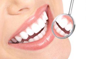 San Francisco Dental Bonding Patient