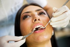 root canal therapy san francisco