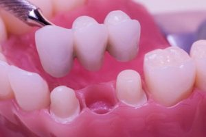 Close up of dental bridges from San Francisco Aesthetic Dentistry