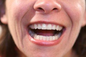 mouth reconstruction san francisco