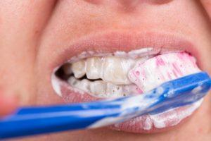 Whitening Toothpastes