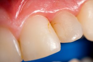 Tooth Discoloration Sources