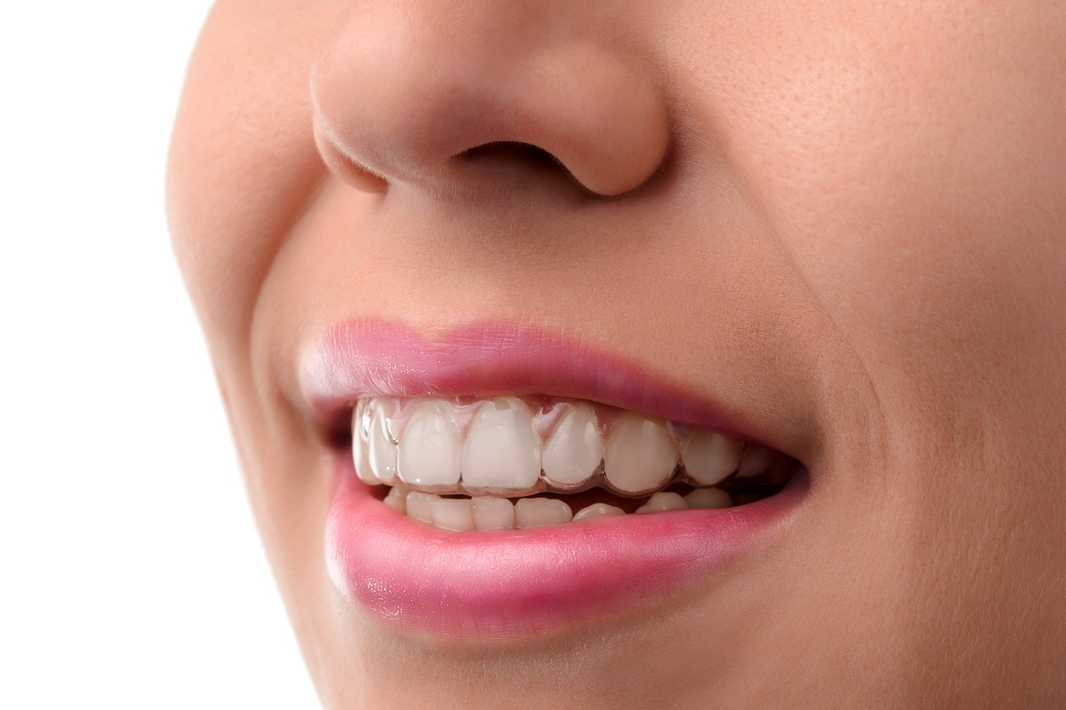 Solutions to Fix Crowded Teeth San Francisco