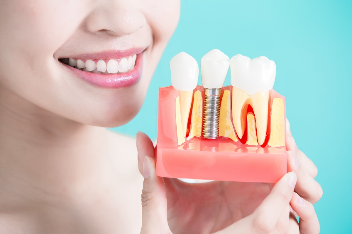 Dental Implants San Francisco